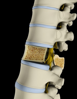 Osteoporosis of the Spine